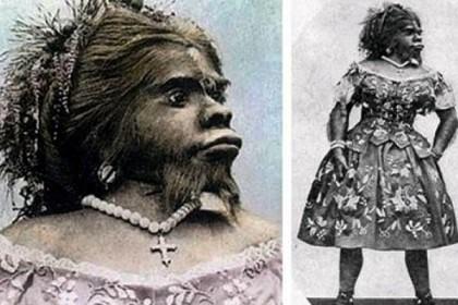 Julia Pastrana, la Mujer Lobo.